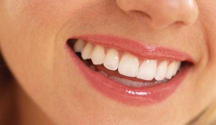 Photo of Sağlıklı Gülüşler Öneriler…
